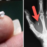 Greyerz – Implantable Human Microchips And The Great Reset